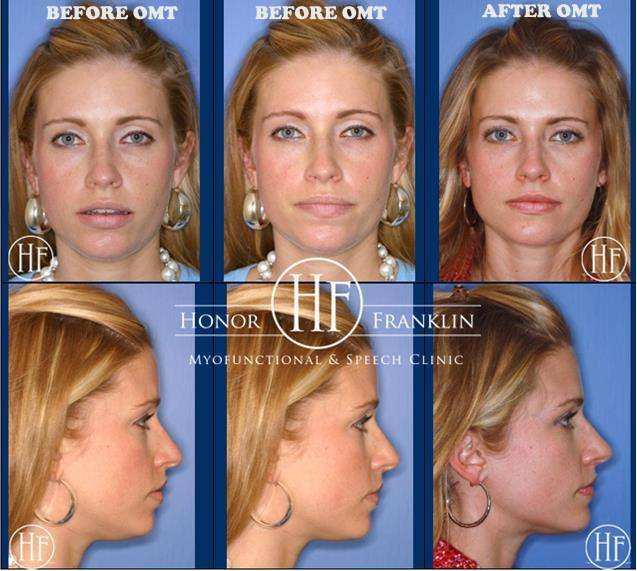 Before and After Face Photos of OMT Therapy
