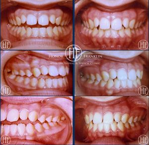 Before & After Orofacial Myofunctional Therapy