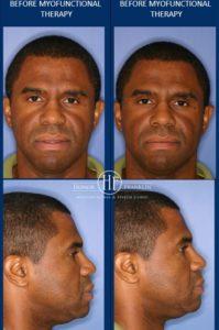 Gerald 2007 Face