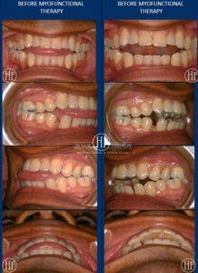 Gerald 2007 Teeth